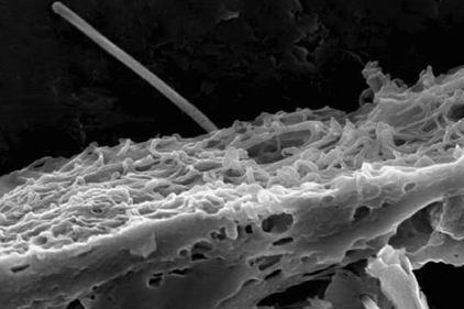 Carbon Nanotube penetrating lung